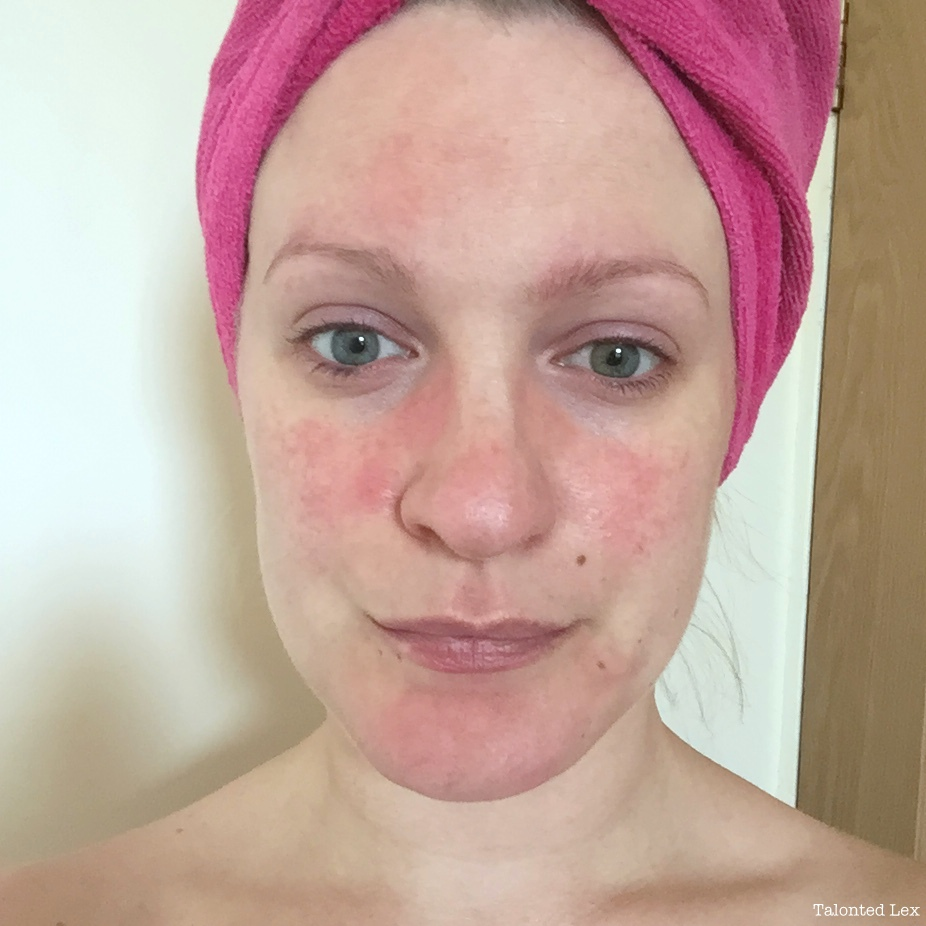 how to you get rosacea