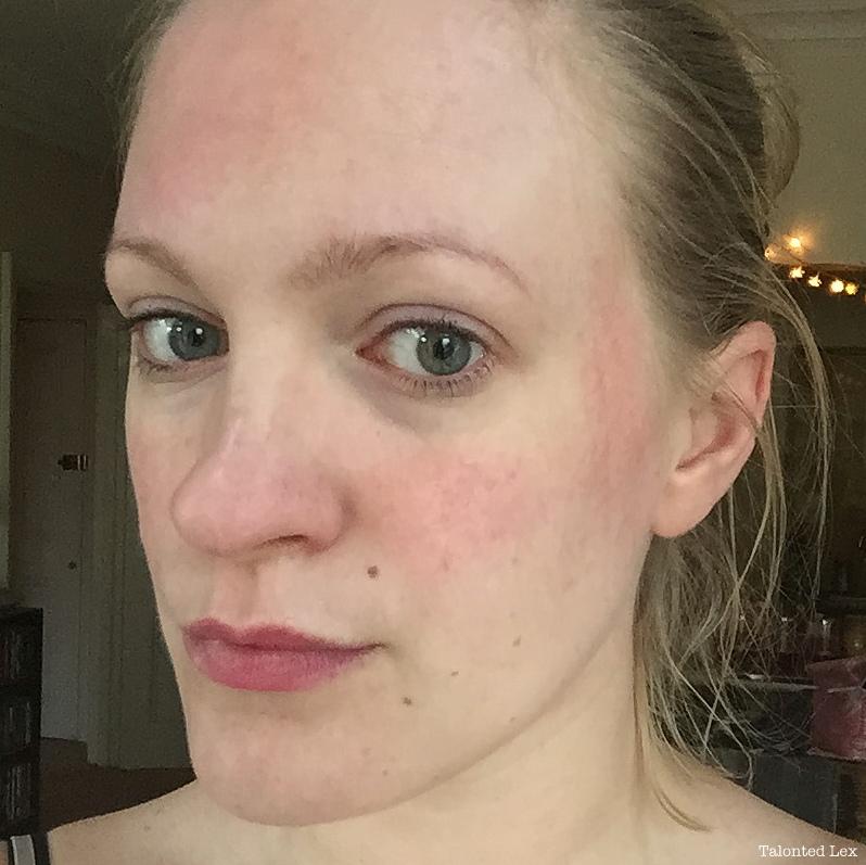 forehead rash #9