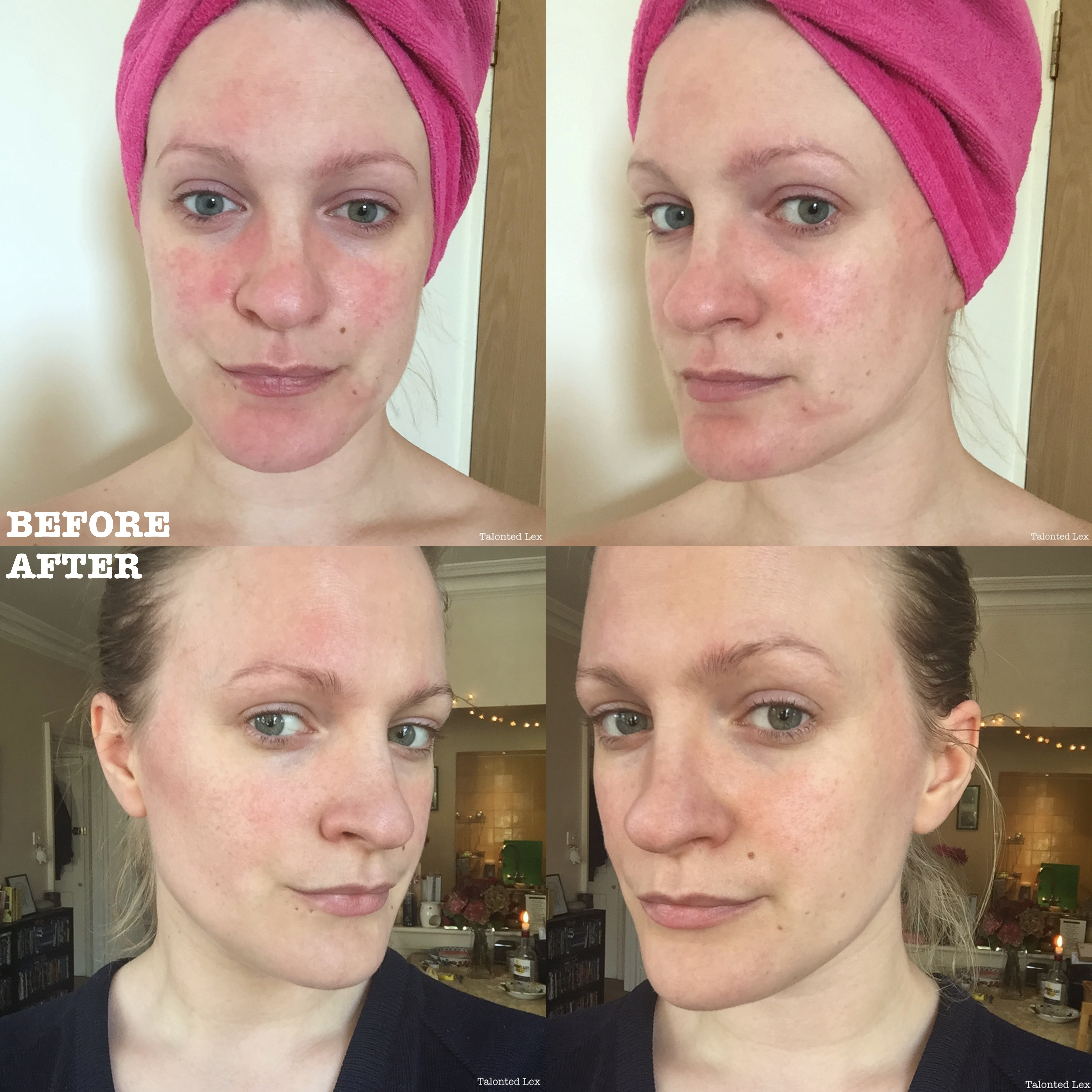 Rosacea: treatment, reviews. Facial Rosacea: Laser Treatment 54