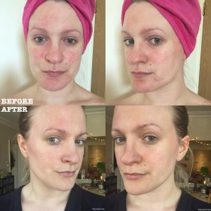 SEQuaderma Treatment For Rosacea And Facial Redness RosaceaReview