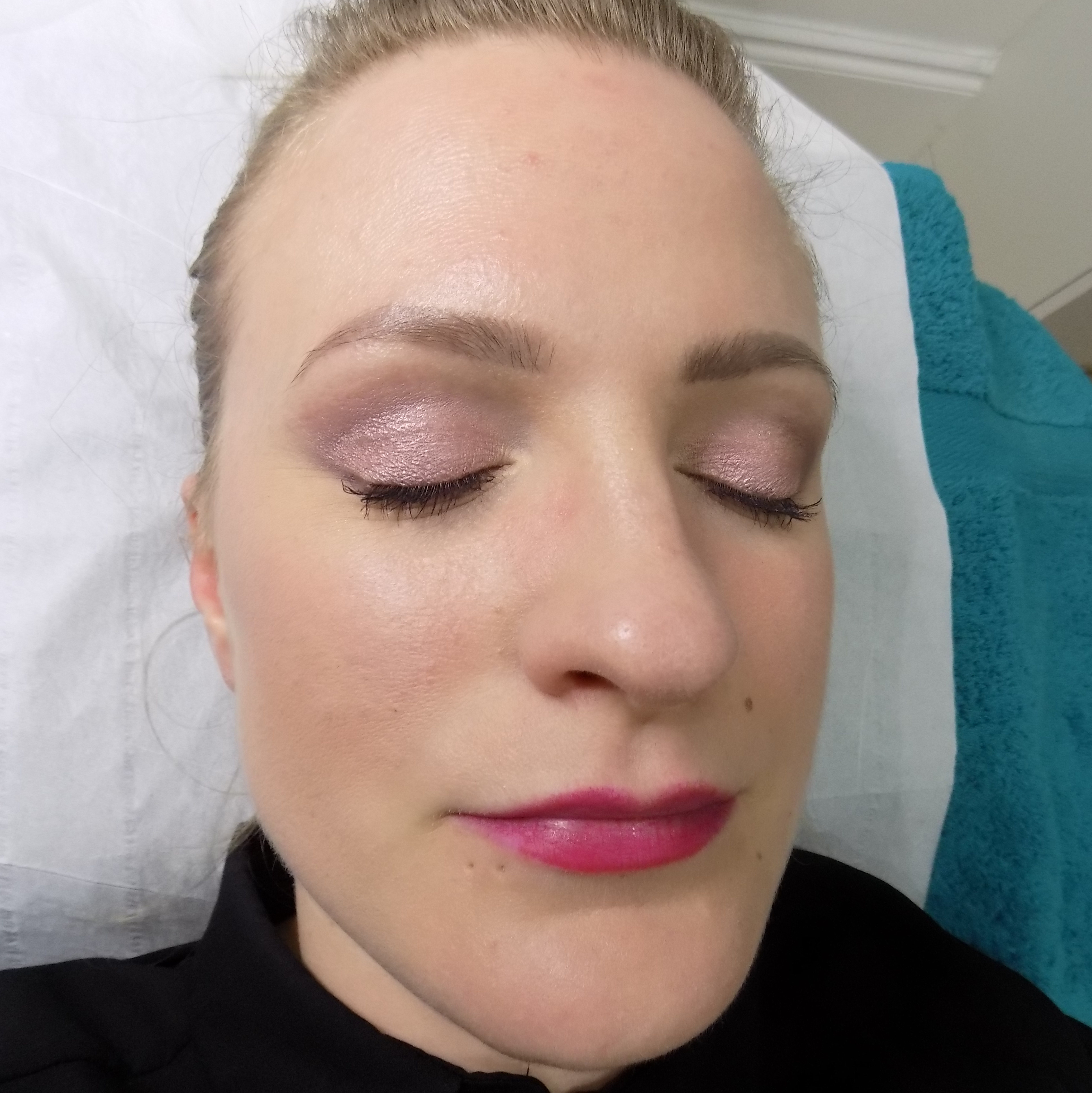 Skinbreeze CACI facial review for rosacea-prone skin - Talonted Lex