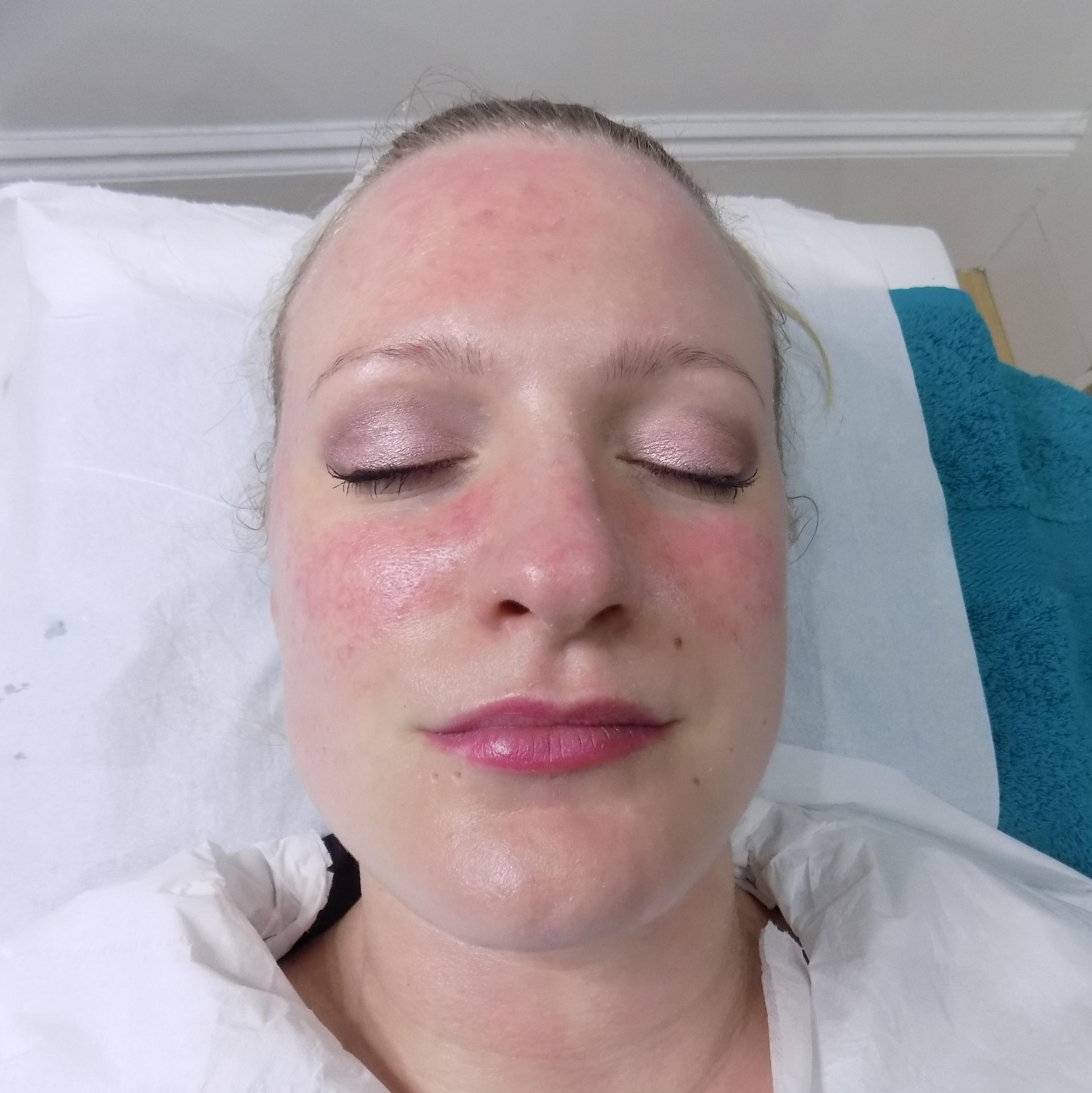 Skinbreeze CACI facial review, rosacea-prone skin - Talonted Lex